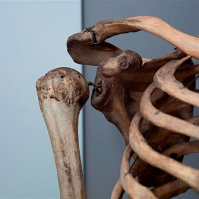 Detail from skeleton of Charles Byrne (Royal College of Surgeons)